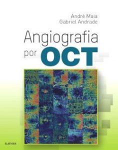 Angiografia por OCT
